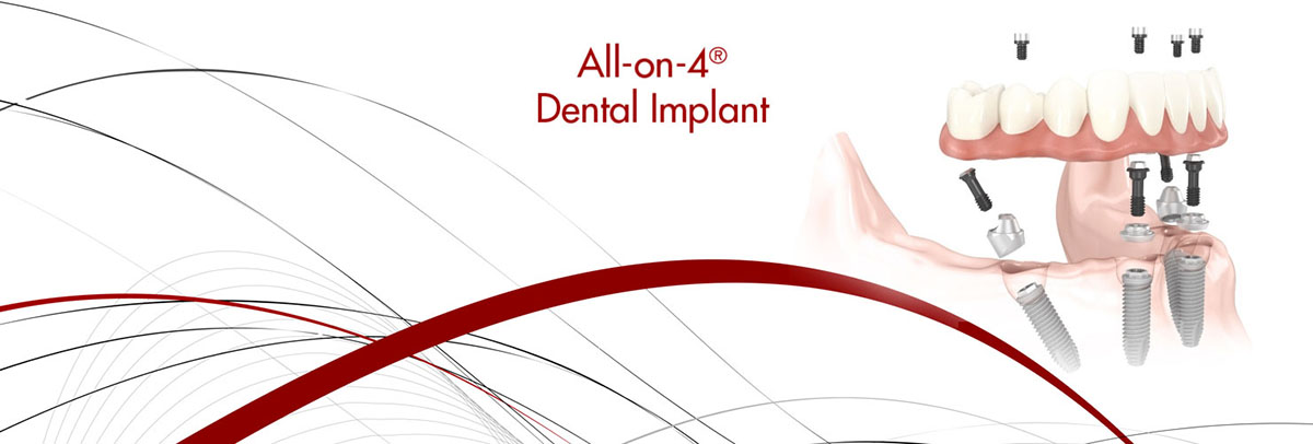 Dunwoody All-on-4 Dental Implants