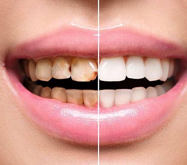 Dunwoody Dental Implant Restoration