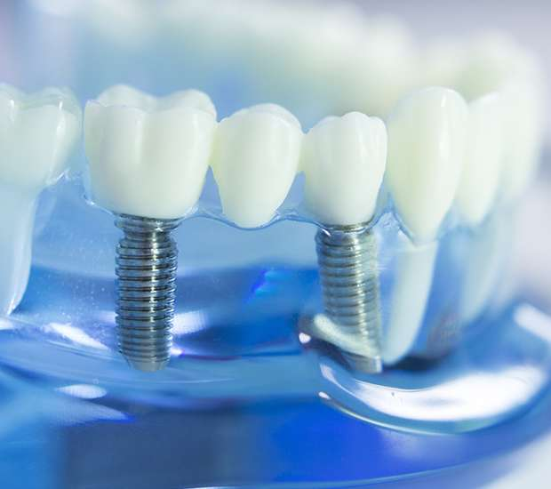 Dunwoody Dental Prosthetics