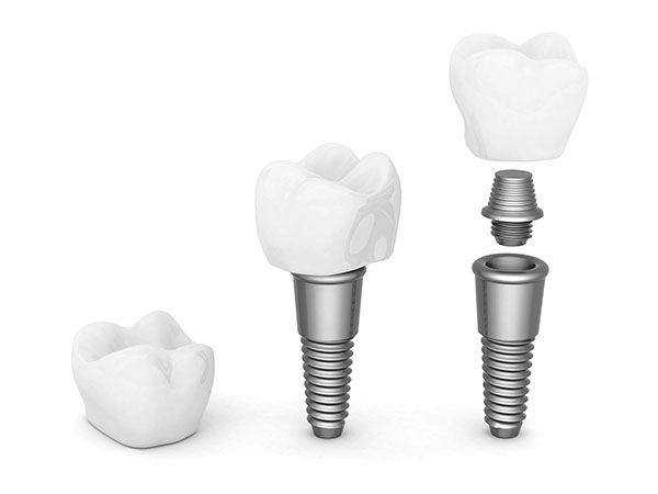 The Impact Of Dental Implants On Your Facial Structure