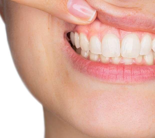 Dunwoody Gum Disease