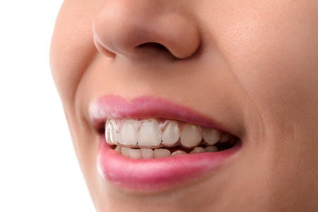 Learn How Teeth Can Be Straightened Invisibly From An Invisalign® Dentist